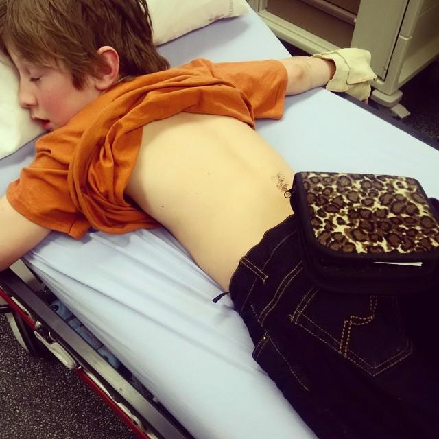 Carson broken arm